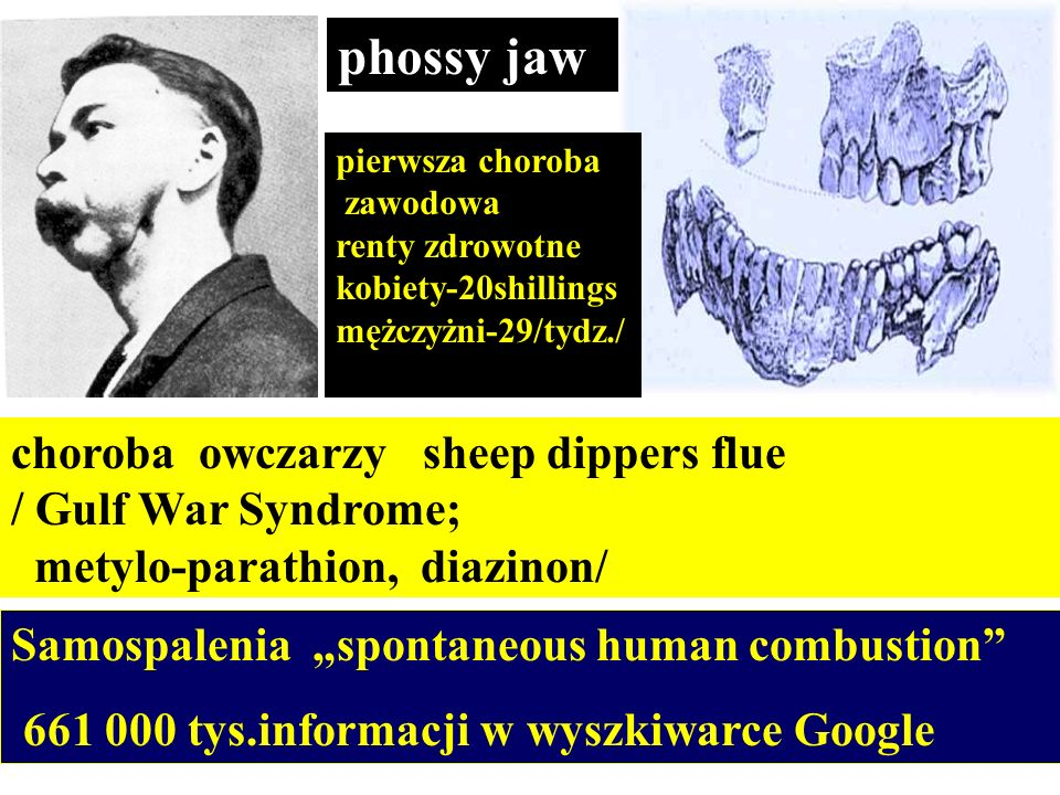 phossy jaw choroba owczarzy sheep dippers flue / Gulf War Syndrome;