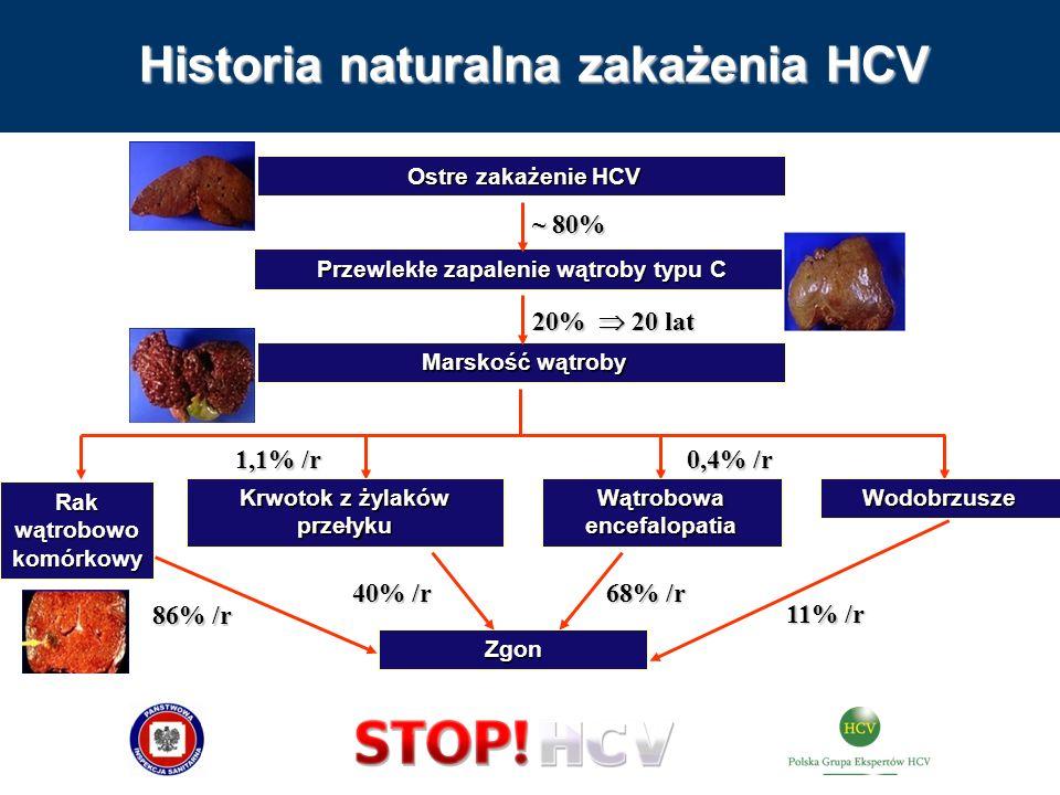Historia naturalna zakażenia HCV