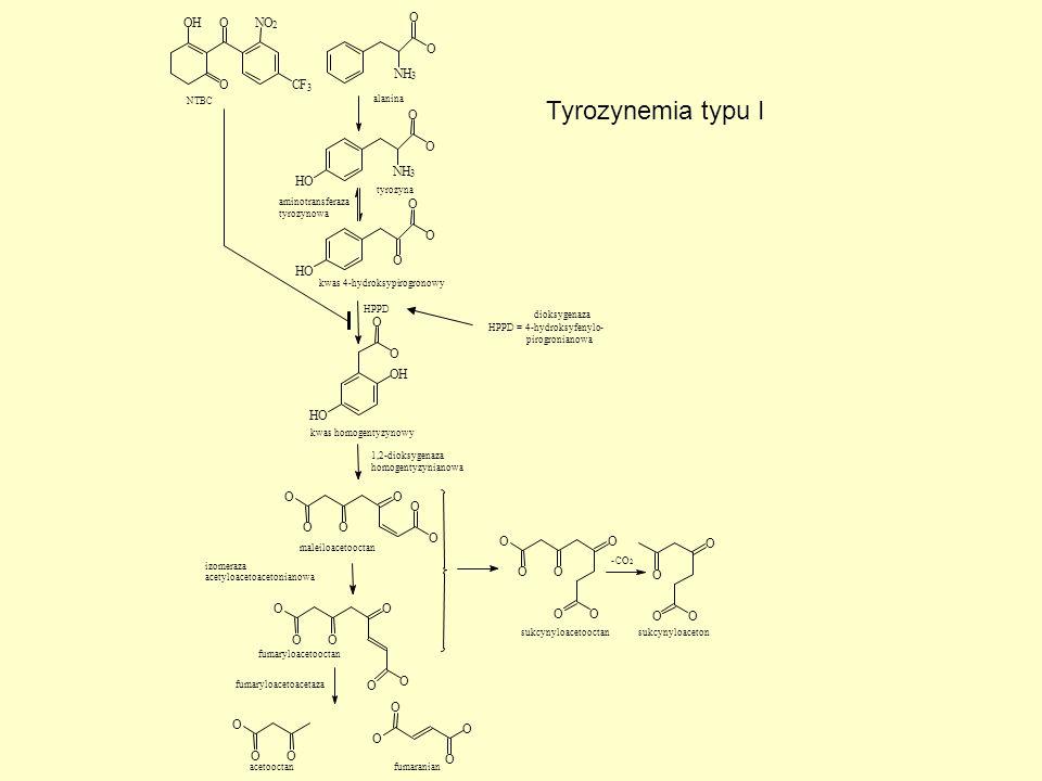 Tyrozynemia typu I H O N C F O O O H H O 3 2 NTBC alanina tyrozyna