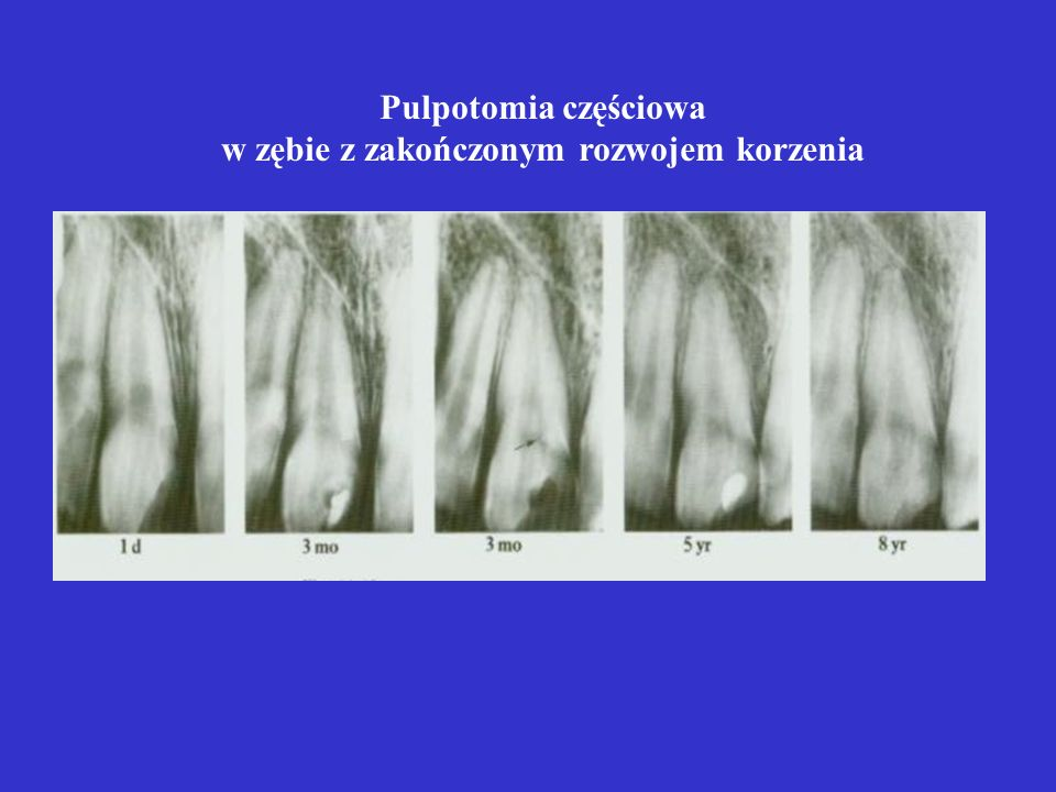 w zębie z zakończonym rozwojem korzenia