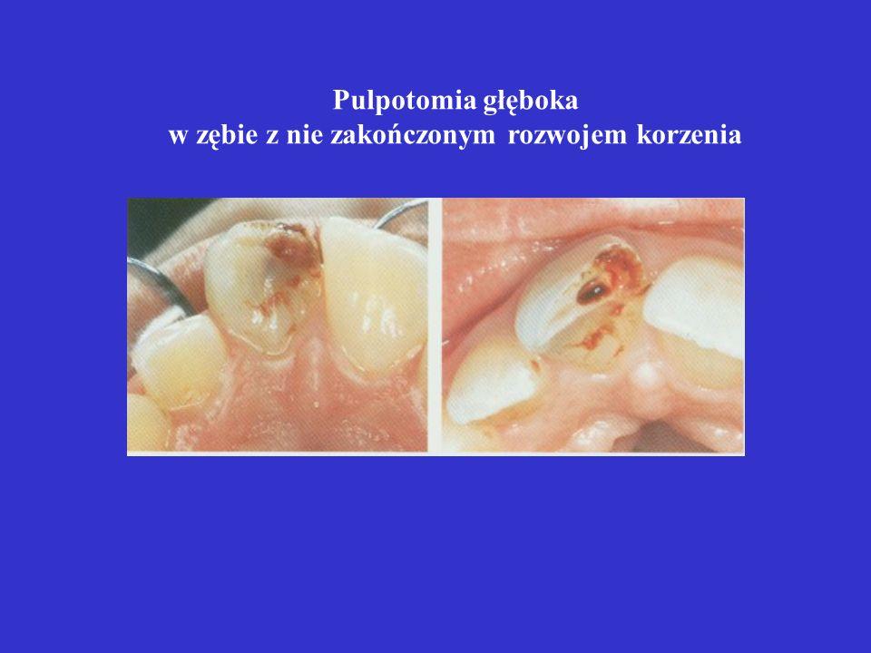 w zębie z nie zakończonym rozwojem korzenia