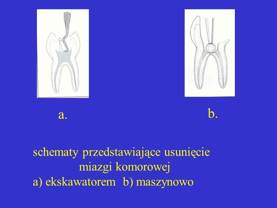 b. a. schematy przedstawiające usunięcie miazgi komorowej