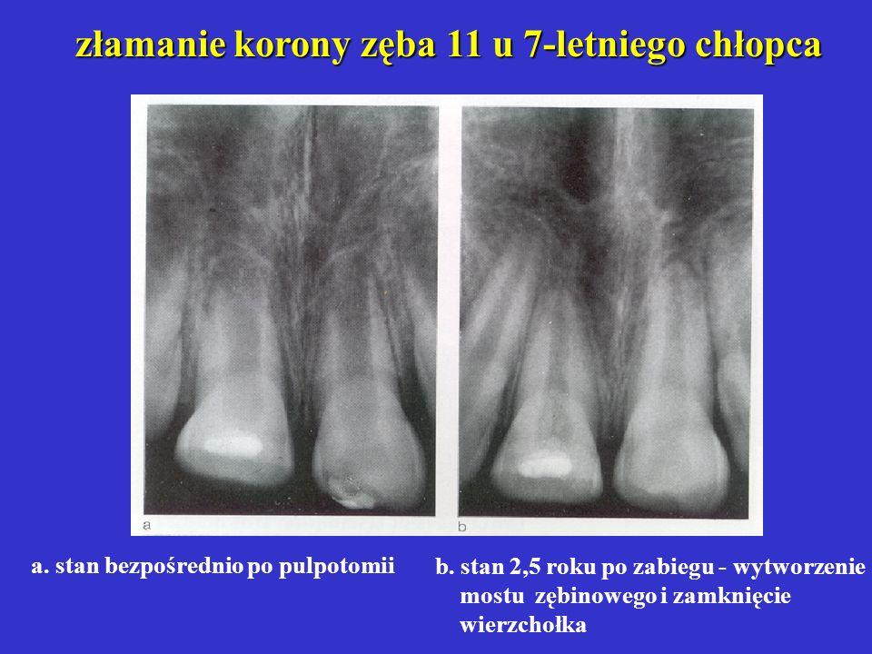 złamanie korony zęba 11 u 7-letniego chłopca