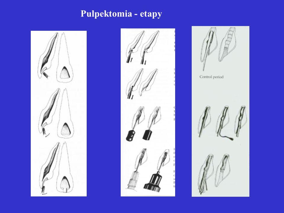 Pulpektomia - etapy