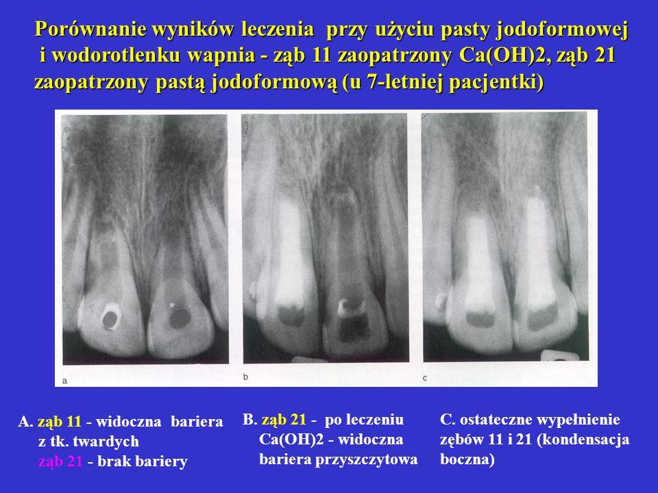 Porównanie wyników leczenia przy użyciu pasty jodoformowej