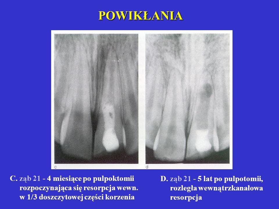 POWIKŁANIA C. ząb 21 - 4 miesiące po pulpoktomii