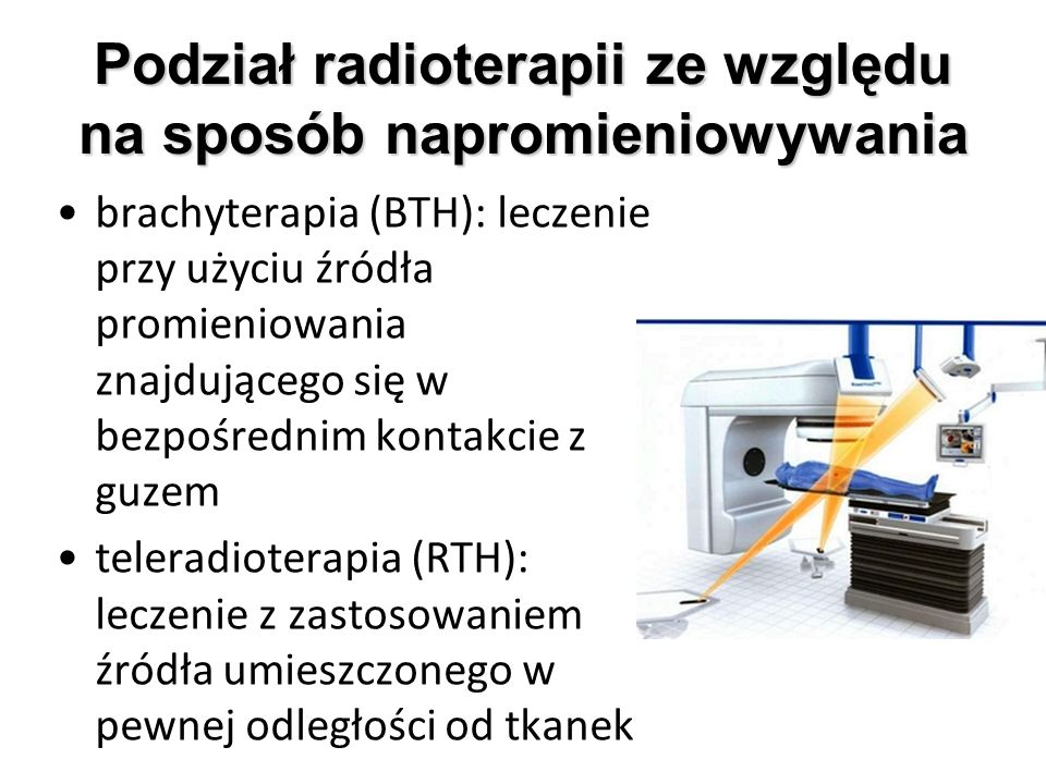 Podział radioterapii ze względu na sposób napromieniowywania