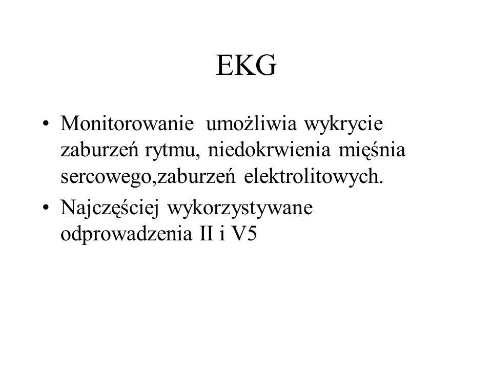 EKG Monitorowanie umożliwia wykrycie zaburzeń rytmu, niedokrwienia mięśnia sercowego,zaburzeń elektrolitowych.