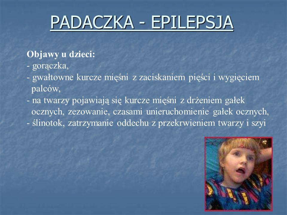 PADACZKA - EPILEPSJA Objawy u dzieci: gorączka,