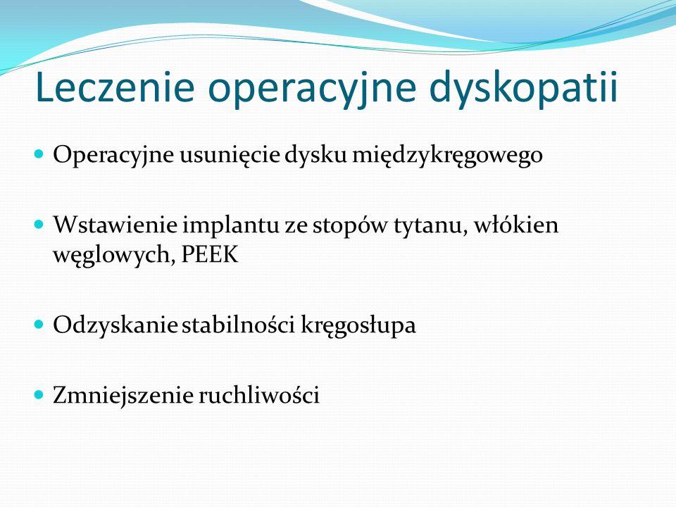 Leczenie operacyjne dyskopatii
