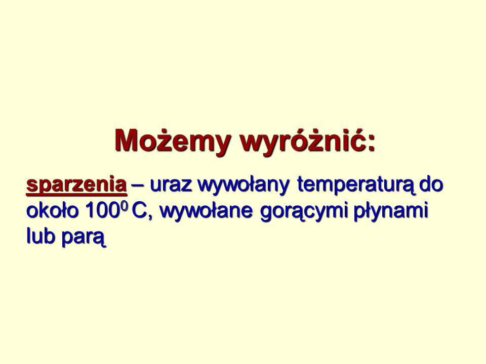 Możemy wyróżnić: sparzenia – uraz wywołany temperaturą do około 1000 C, wywołane gorącymi płynami lub parą.