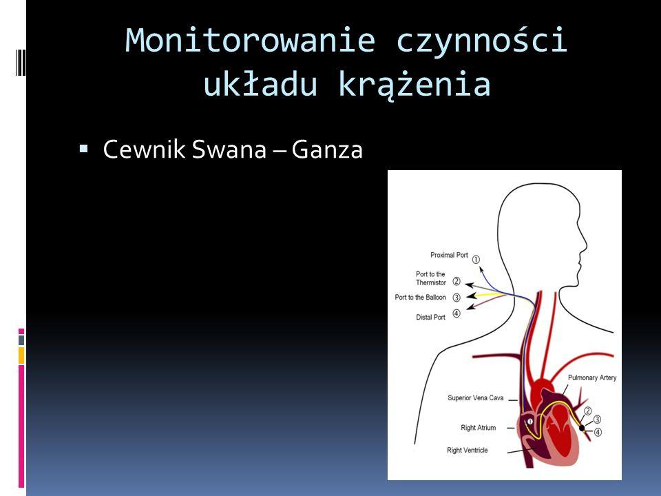 Monitorowanie czynności układu krążenia