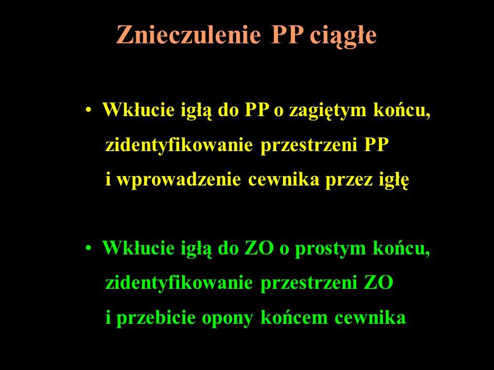 Znieczulenie PP ciągłe