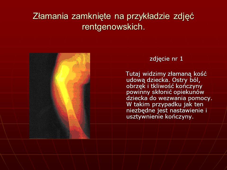 Złamania zamknięte na przykładzie zdjęć rentgenowskich.