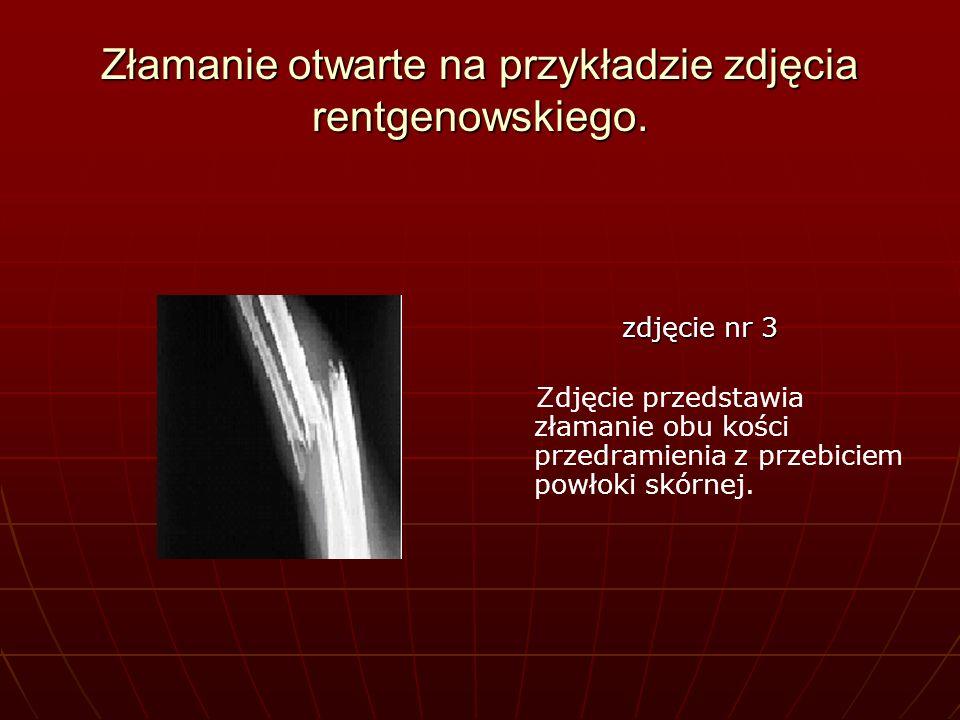 Złamanie otwarte na przykładzie zdjęcia rentgenowskiego.