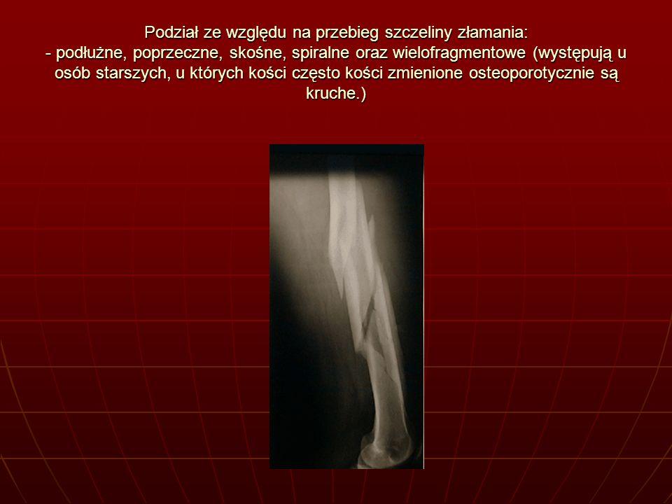 Podział ze względu na przebieg szczeliny złamania: - podłużne, poprzeczne, skośne, spiralne oraz wielofragmentowe (występują u osób starszych, u których kości często kości zmienione osteoporotycznie są kruche.)
