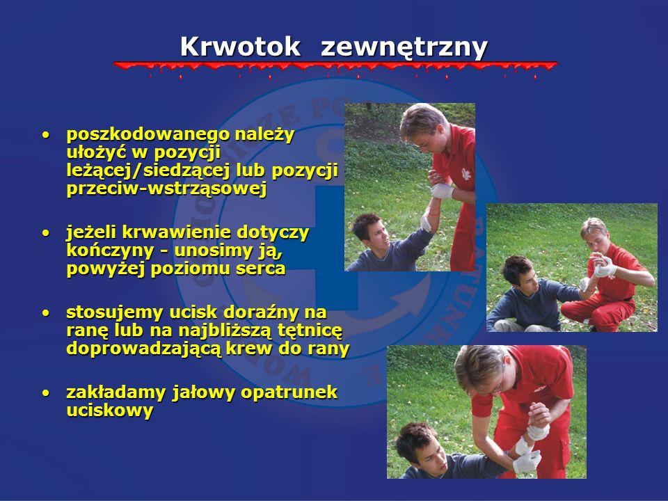 Krwotok zewnętrzny poszkodowanego należy ułożyć w pozycji leżącej/siedzącej lub pozycji przeciw-wstrząsowej.
