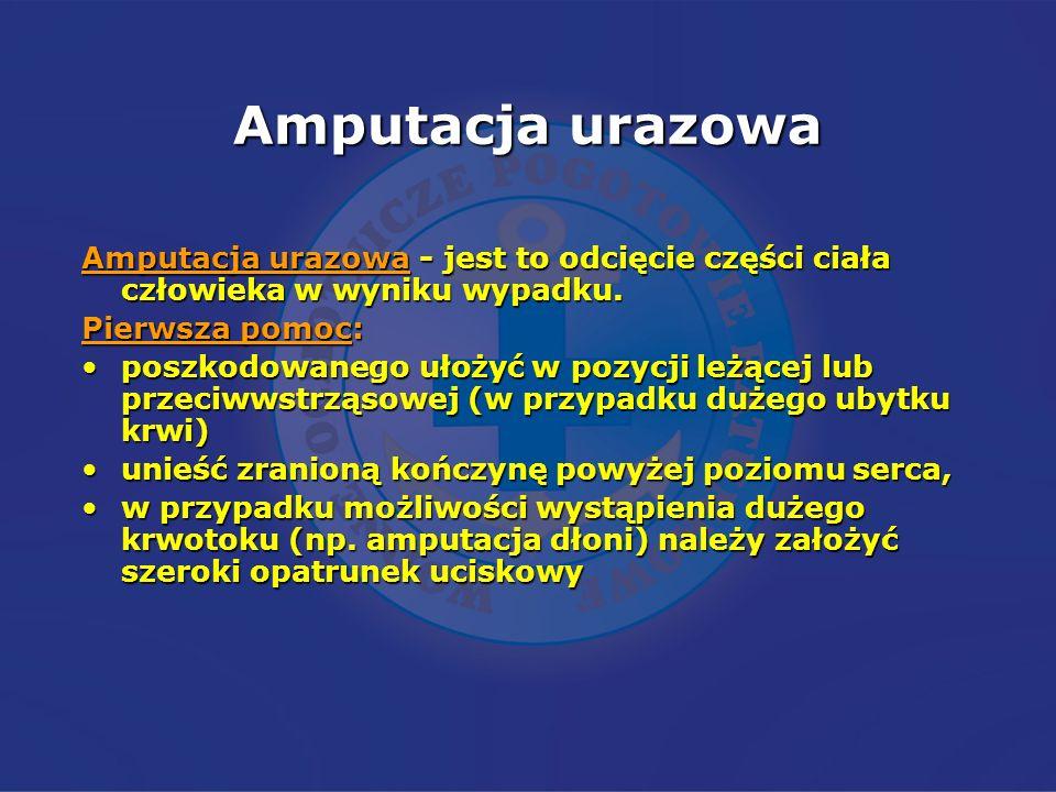 Amputacja urazowaAmputacja urazowa - jest to odcięcie części ciała człowieka w wyniku wypadku. Pierwsza pomoc: