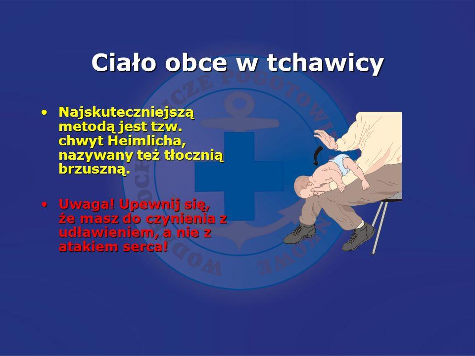 Ciało obce w tchawicyNajskuteczniejszą metodą jest tzw. chwyt Heimlicha, nazywany też tłocznią brzuszną.