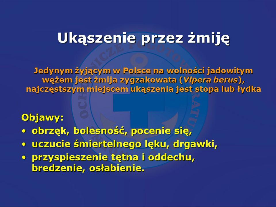 Ukąszenie przez żmiję Jedynym żyjącym w Polsce na wolności jadowitym wężem jest żmija zygzakowata (Vipera berus), najczęstszym miejscem ukąszenia jest stopa lub łydka