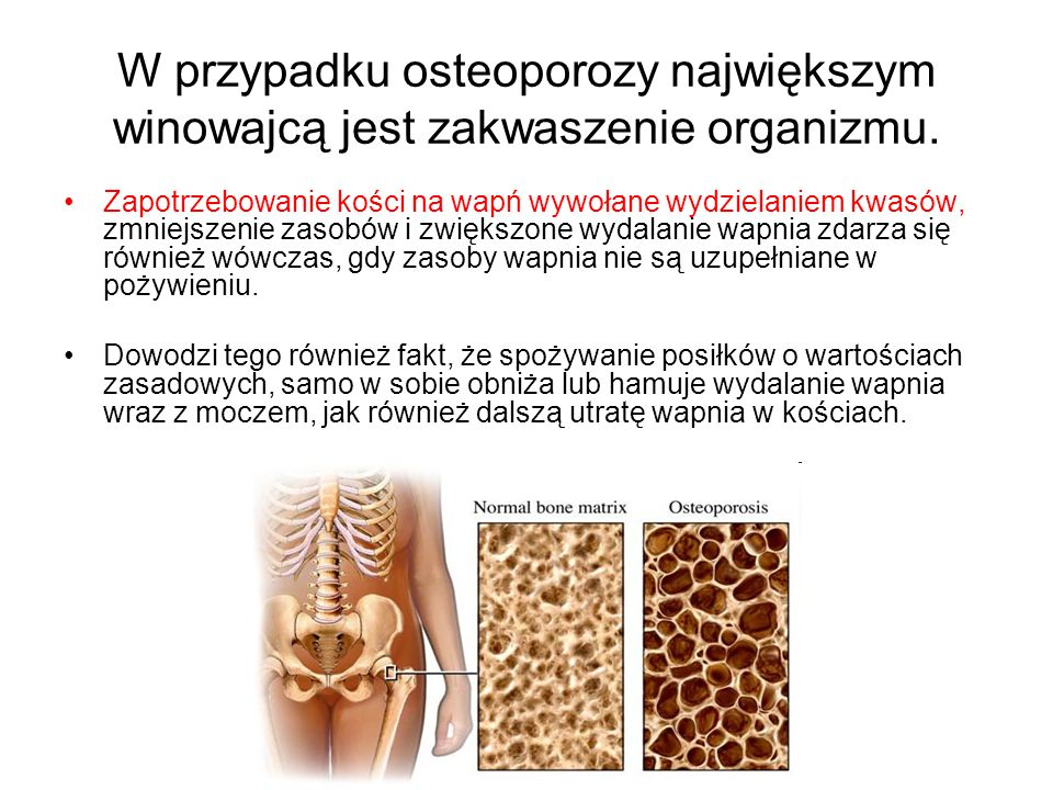 W przypadku osteoporozy największym winowajcą jest zakwaszenie organizmu.