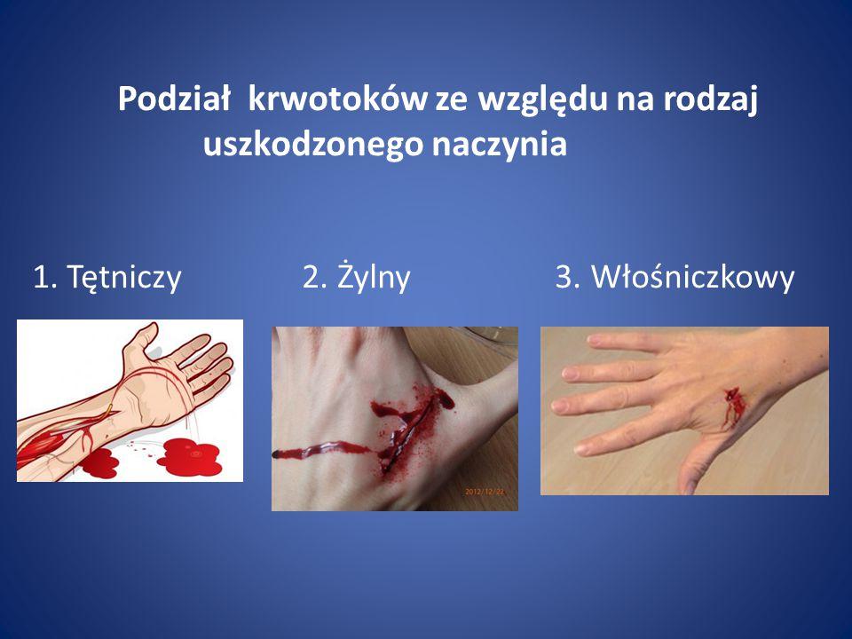 Podział krwotoków ze względu na rodzaj. uszkodzonego naczynia 1