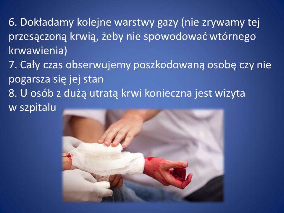 6. Dokładamy kolejne warstwy gazy (nie zrywamy tej przesączoną krwią, żeby nie spowodować wtórnego krwawienia)
