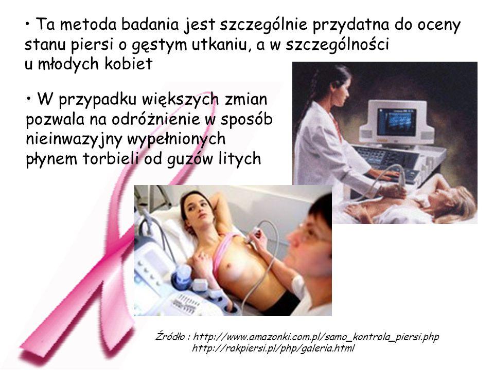 Ta metoda badania jest szczególnie przydatna do oceny stanu piersi o gęstym utkaniu, a w szczególności u młodych kobiet