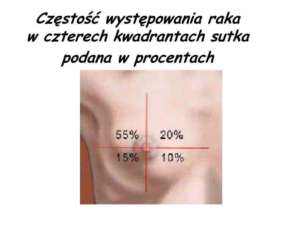 Częstość występowania raka w czterech kwadrantach sutka podana w procentach