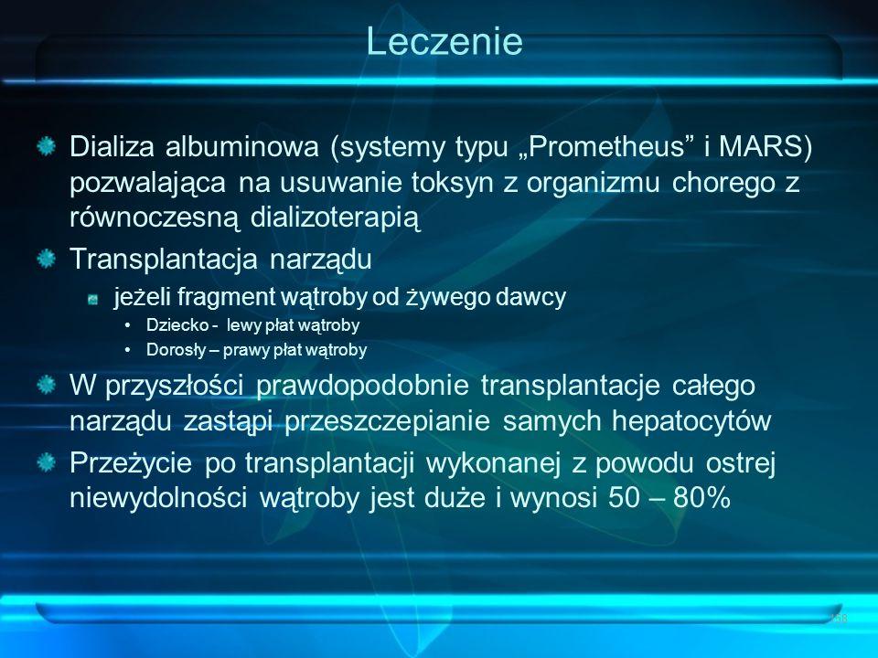 """Leczenie Dializa albuminowa (systemy typu """"Prometheus i MARS) pozwalająca na usuwanie toksyn z organizmu chorego z równoczesną dializoterapią."""