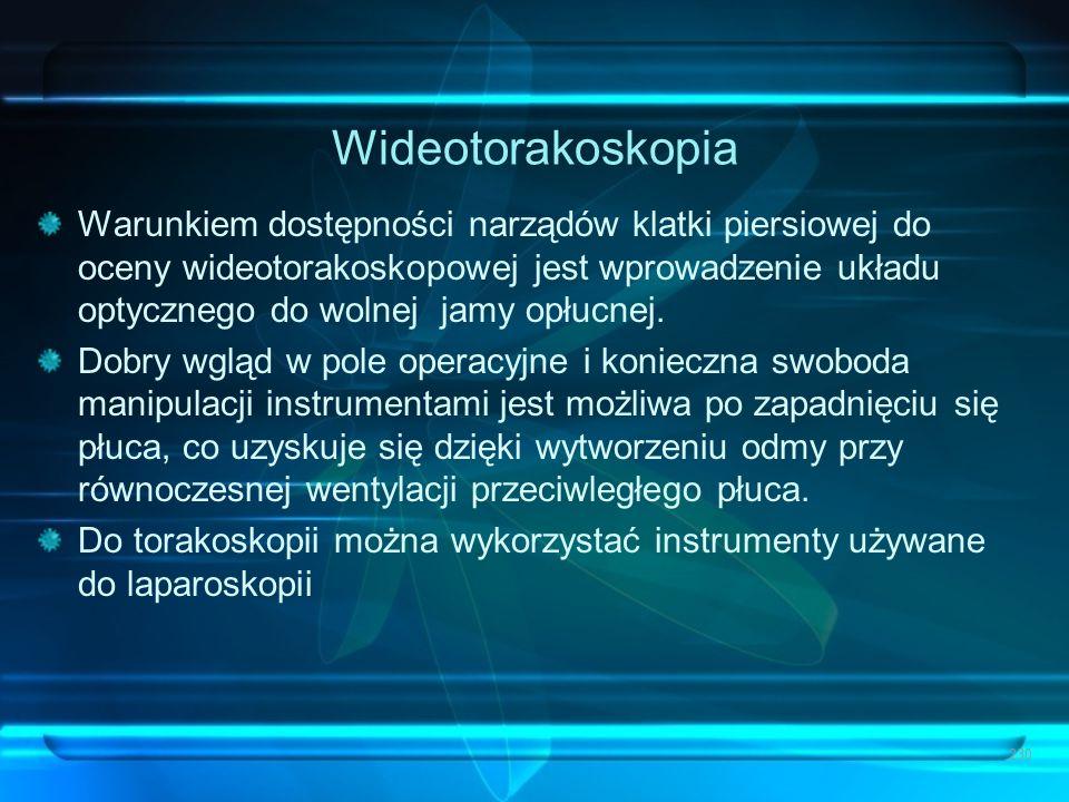 Wideotorakoskopia