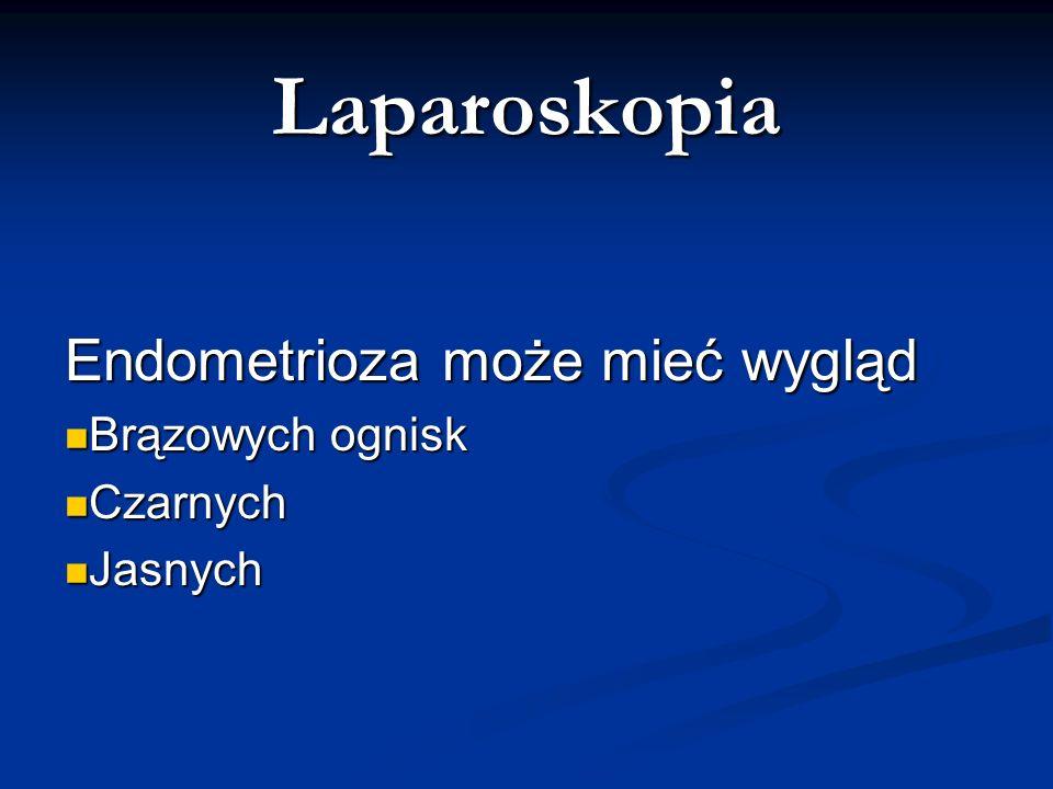 Laparoskopia Endometrioza może mieć wygląd Brązowych ognisk Czarnych
