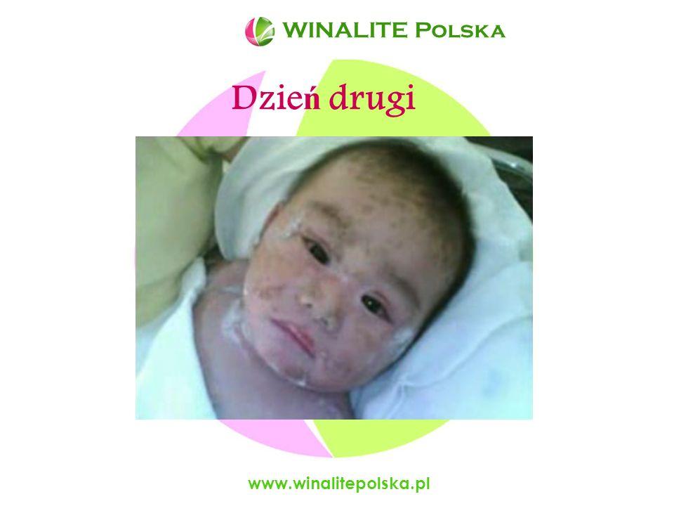 WINALITE Polska WINALITE Polska Dzień drugi www.winalitepolska.pl