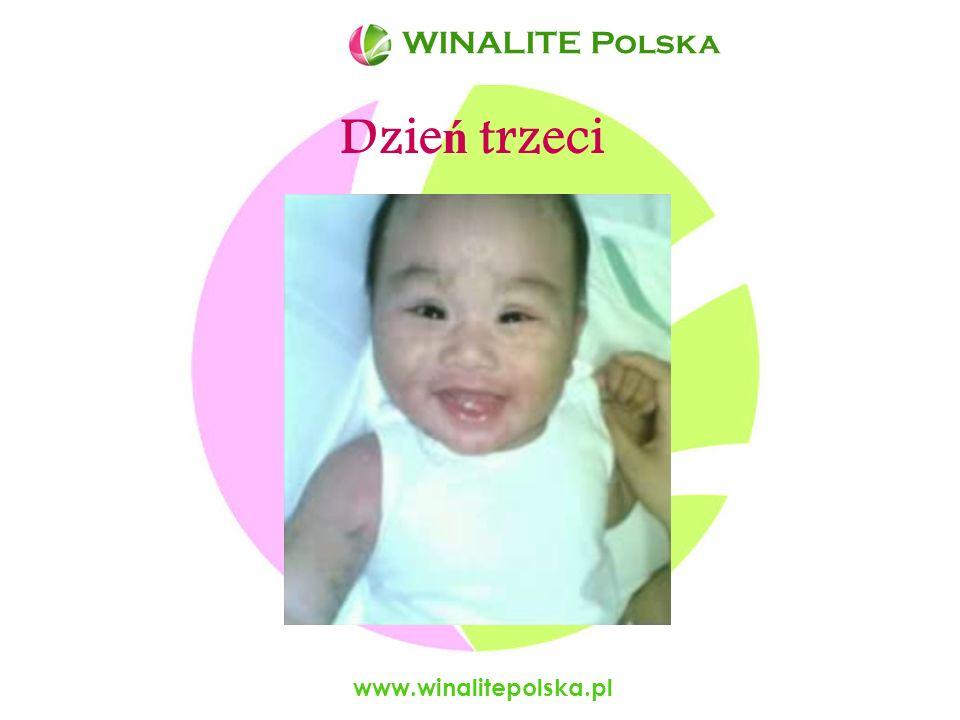 WINALITE Polska WINALITE Polska Dzień trzeci www.winalitepolska.pl