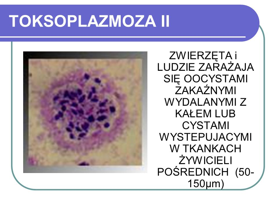TOKSOPLAZMOZA II