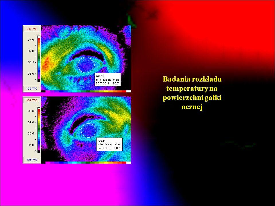 Badania rozkładu temperatury na powierzchni gałki ocznej