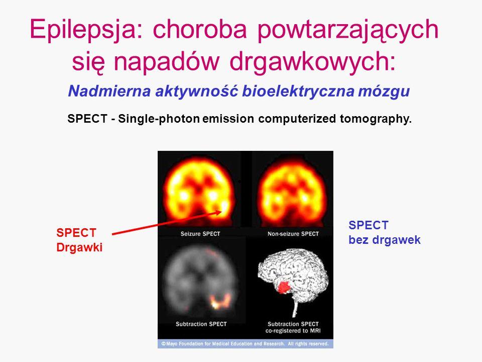 Epilepsja: choroba powtarzających się napadów drgawkowych:
