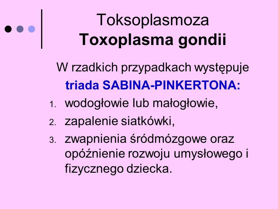 Toksoplasmoza Toxoplasma gondii