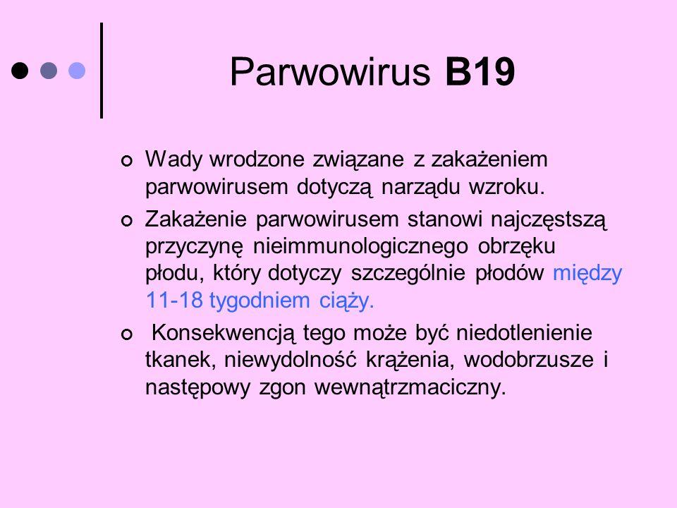 Parwowirus B19 Wady wrodzone związane z zakażeniem parwowirusem dotyczą narządu wzroku.