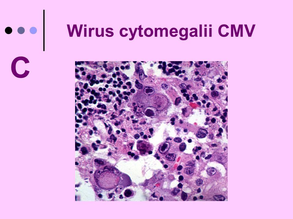 Wirus cytomegalii CMV C