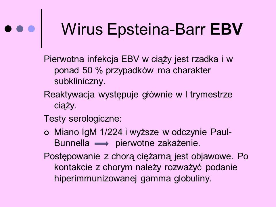 Wirus Epsteina-Barr EBV