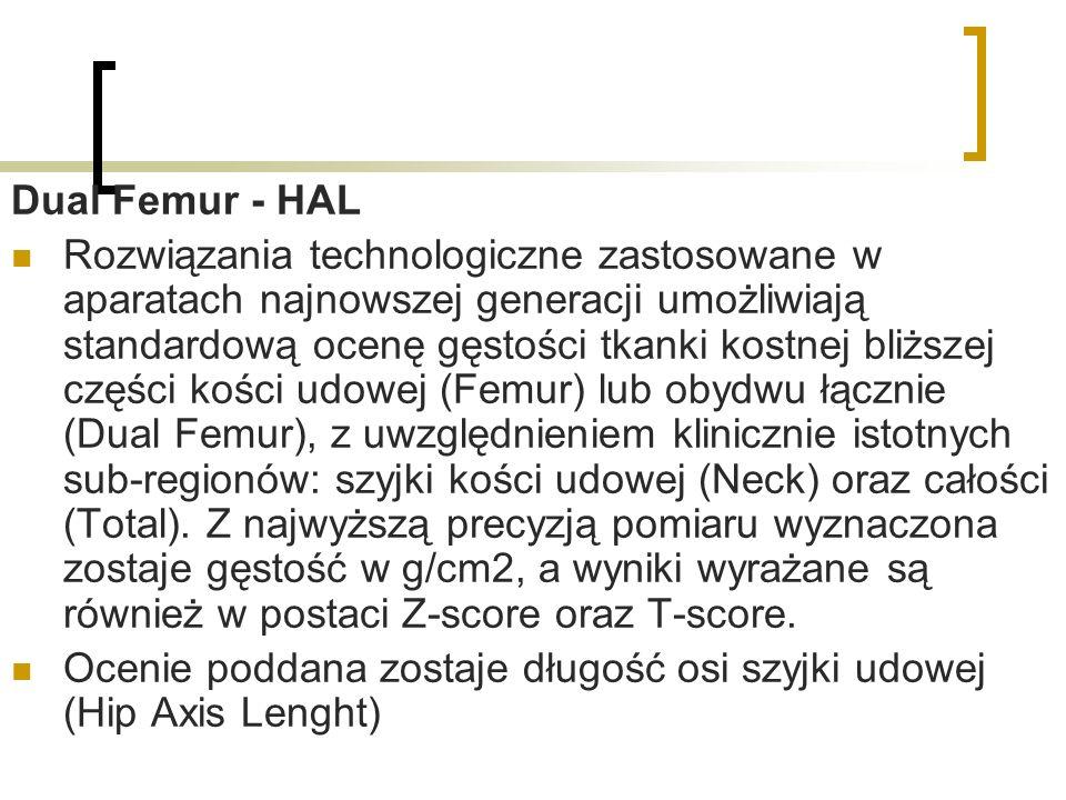 Dual Femur - HAL