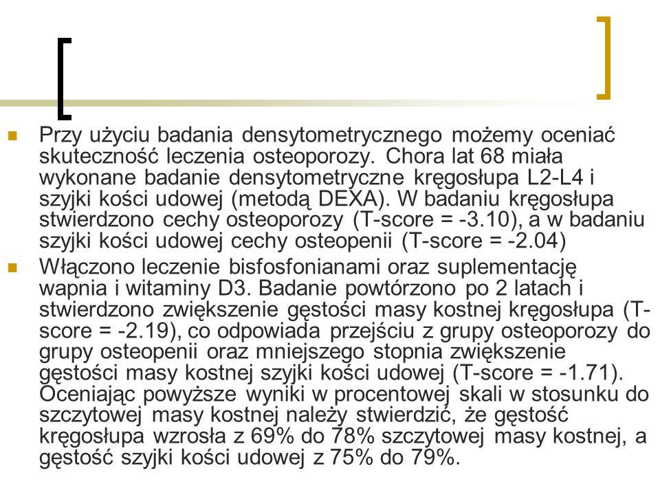 Przy użyciu badania densytometrycznego możemy oceniać skuteczność leczenia osteoporozy. Chora lat 68 miała wykonane badanie densytometryczne kręgosłupa L2-L4 i szyjki kości udowej (metodą DEXA). W badaniu kręgosłupa stwierdzono cechy osteoporozy (T-score = -3.10), a w badaniu szyjki kości udowej cechy osteopenii (T-score = -2.04)