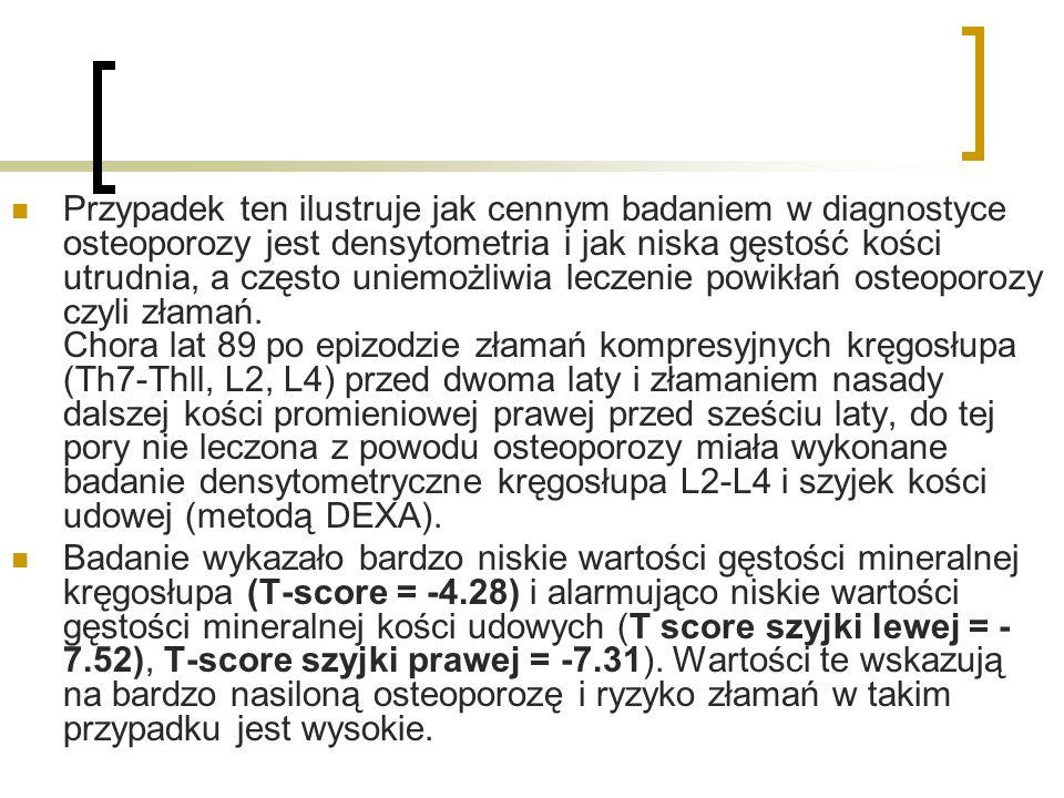 Przypadek ten ilustruje jak cennym badaniem w diagnostyce osteoporozy jest densytometria i jak niska gęstość kości utrudnia, a często uniemożliwia leczenie powikłań osteoporozy czyli złamań. Chora lat 89 po epizodzie złamań kompresyjnych kręgosłupa (Th7-Thll, L2, L4) przed dwoma laty i złamaniem nasady dalszej kości promieniowej prawej przed sześciu laty, do tej pory nie leczona z powodu osteoporozy miała wykonane badanie densytometryczne kręgosłupa L2-L4 i szyjek kości udowej (metodą DEXA).