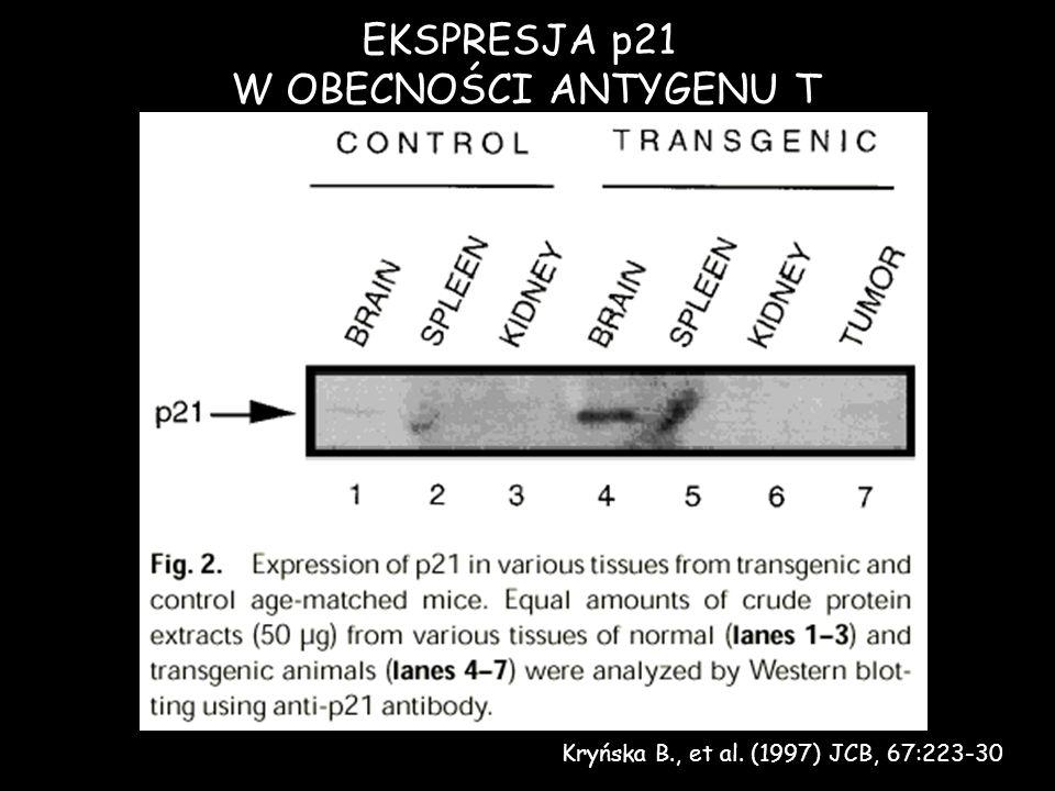 EKSPRESJA p21 W OBECNOŚCI ANTYGENU T