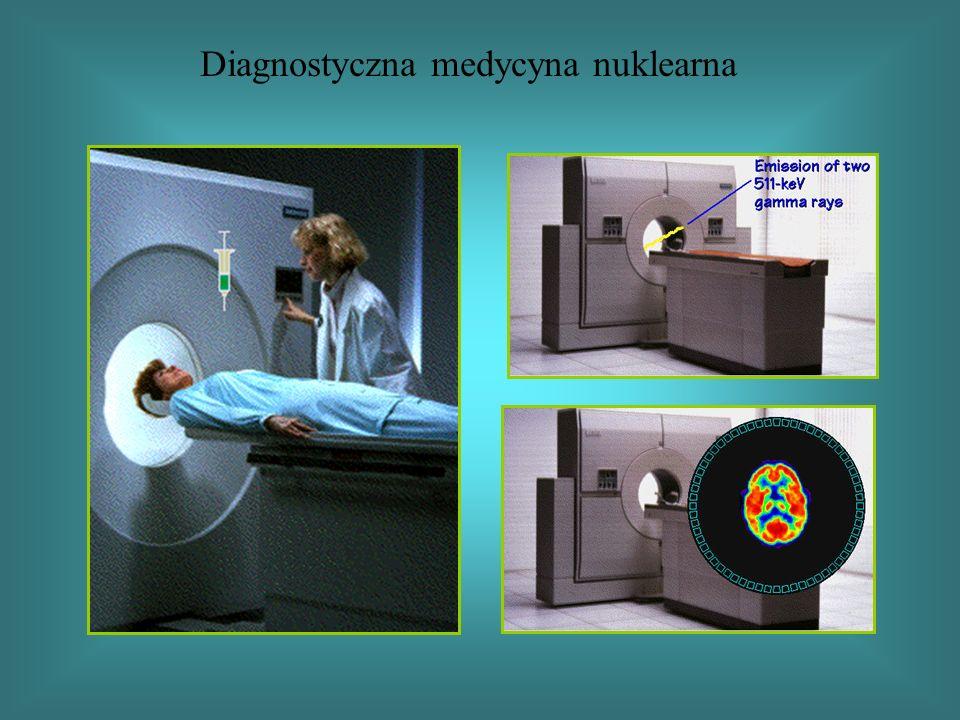 Diagnostyczna medycyna nuklearna