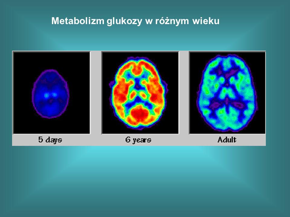 Metabolizm glukozy w różnym wieku