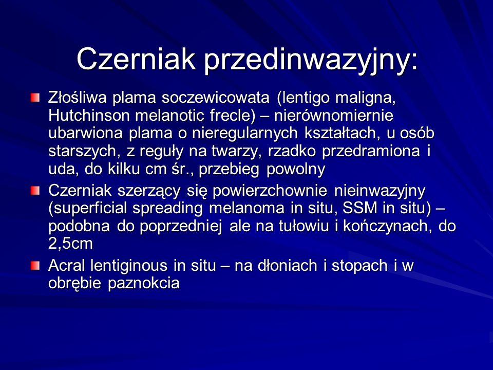 Czerniak przedinwazyjny: