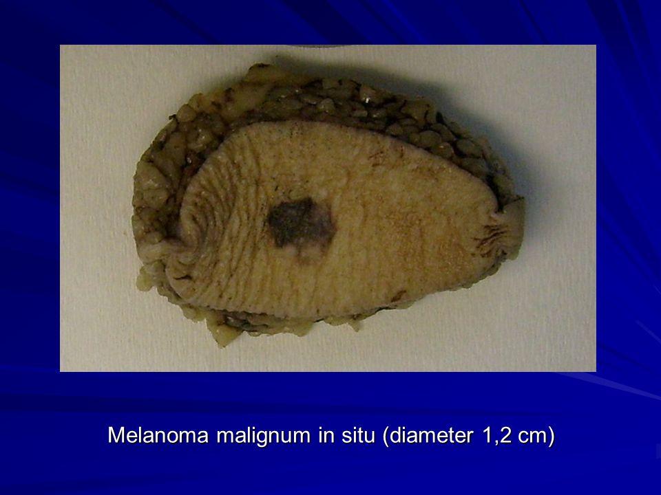 Melanoma malignum in situ (diameter 1,2 cm)