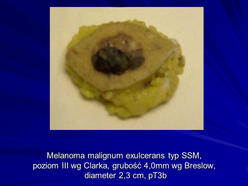 Melanoma malignum exulcerans typ SSM, poziom III wg Clarka, grubość 4,0mm wg Breslow, diameter 2,3 cm, pT3b